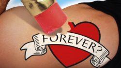 Togliere un tatuaggio
