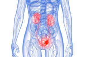 Ayurveda varicosity di trattamento di vene