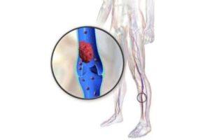 Passaggi di trombosi