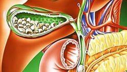 La colelitiasi: cause, sintomi e terapia