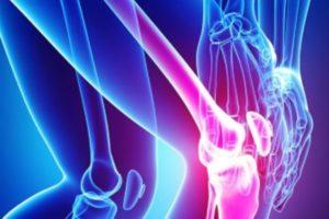 Osteoartrite: prendiamoci cura delle cartilagini