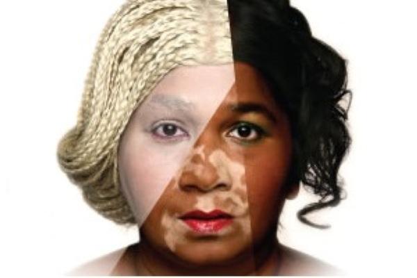 La decolorazione pigmentary nota su una faccia di unguento