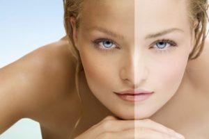 Alterazioni del colore della pelle