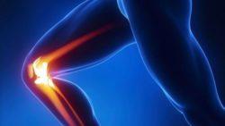 Osteoartrite al ginocchio