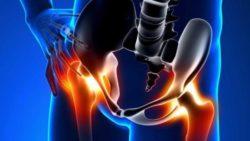 Osteoartrite all'anca